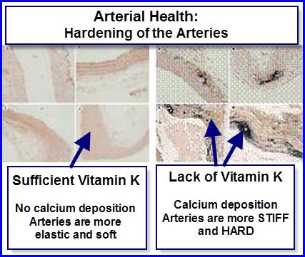 vitamin k reverses breast calcifications jpg 853x1280